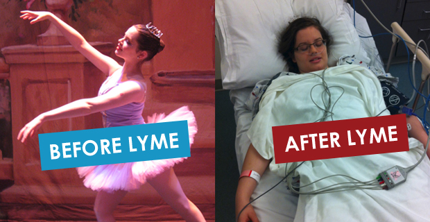 lyme_disease_before_after